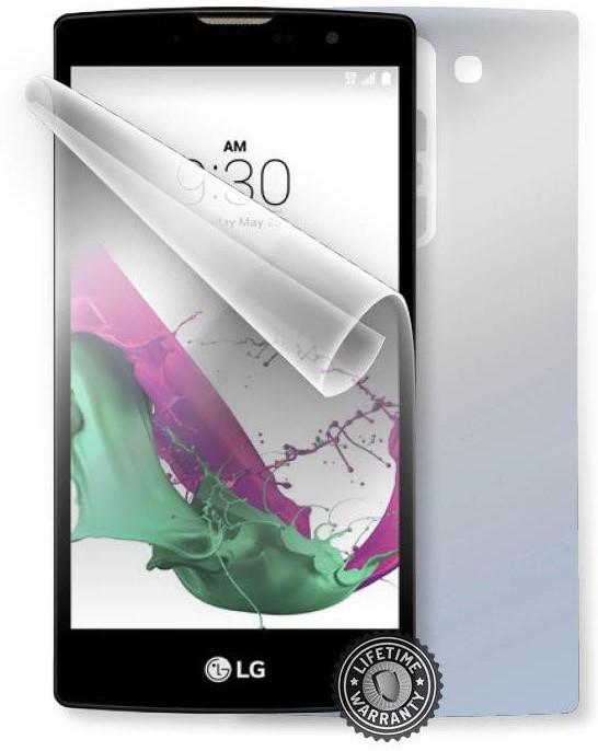 ScreenShield fólie na celé tělo pro LG H525n G4c